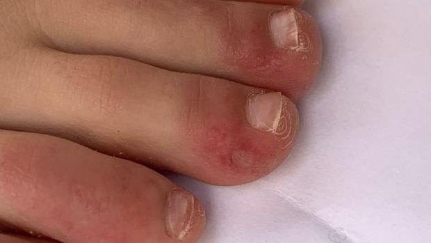 "Echo: ""Covid toe"" is a rash that can look like chilblains. Credit: COVID-PIEL STUDY"