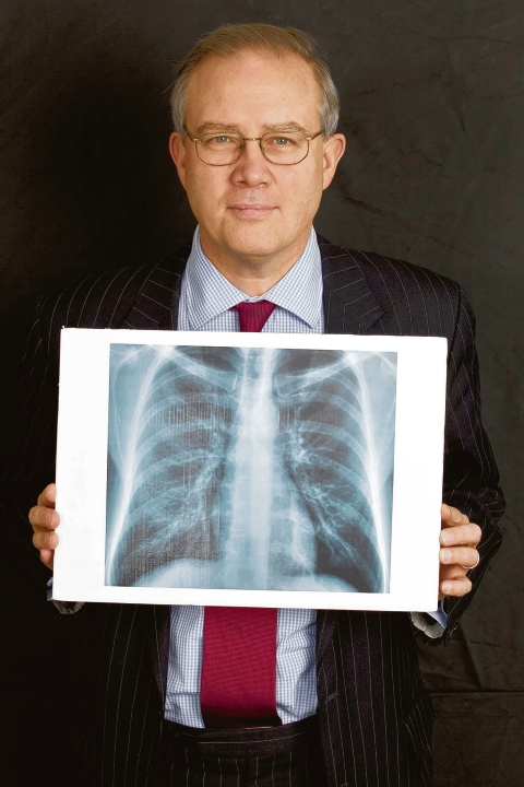 Transparency - Mr John Baron with his X-ray