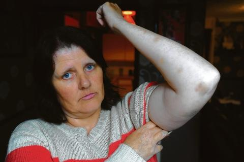 Terrible night – Sue Sutheran, shows bruising on her arm ahe got after she tussled with some of the youngsters