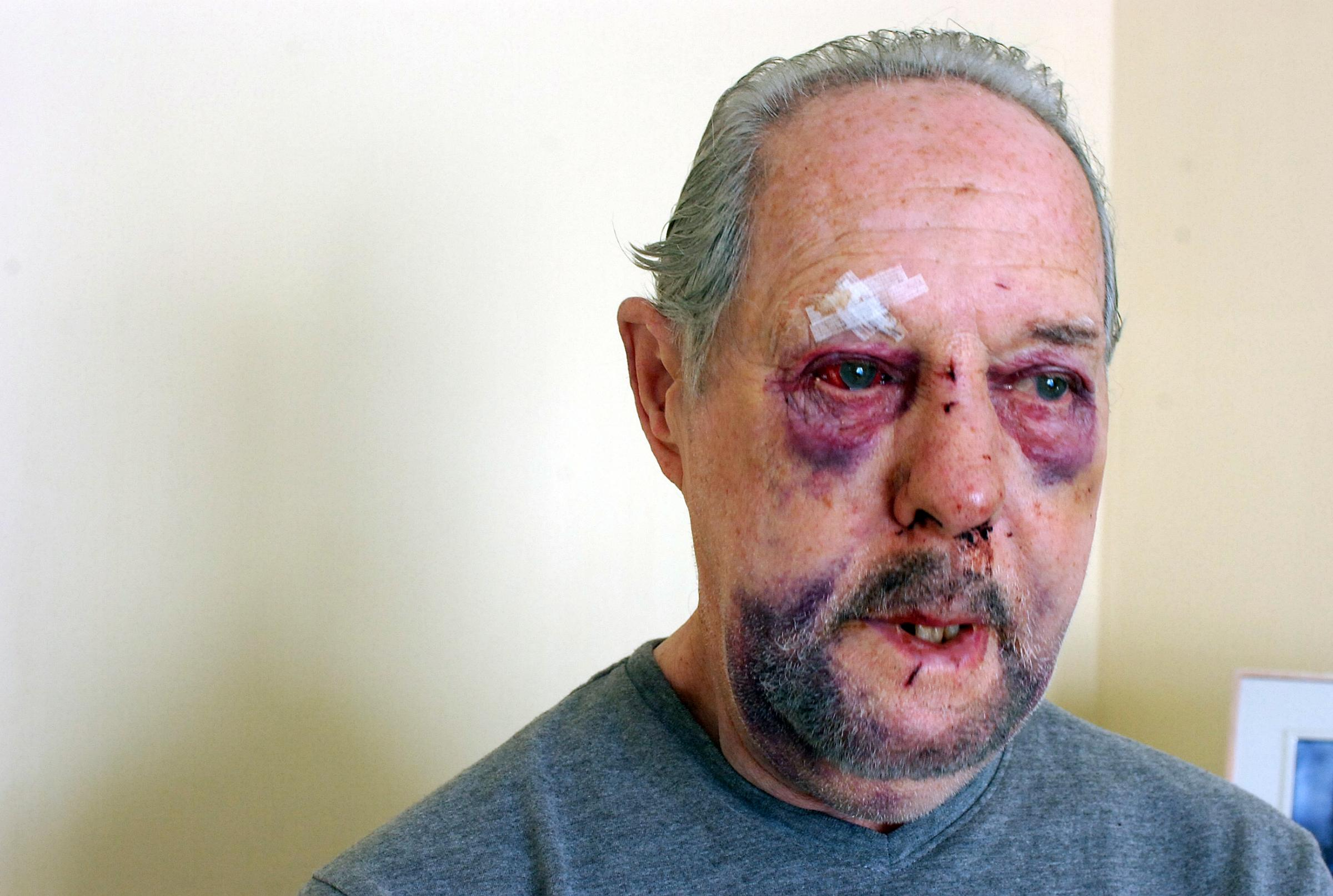 Thugs did this to cabbie Ken, 77, for £11