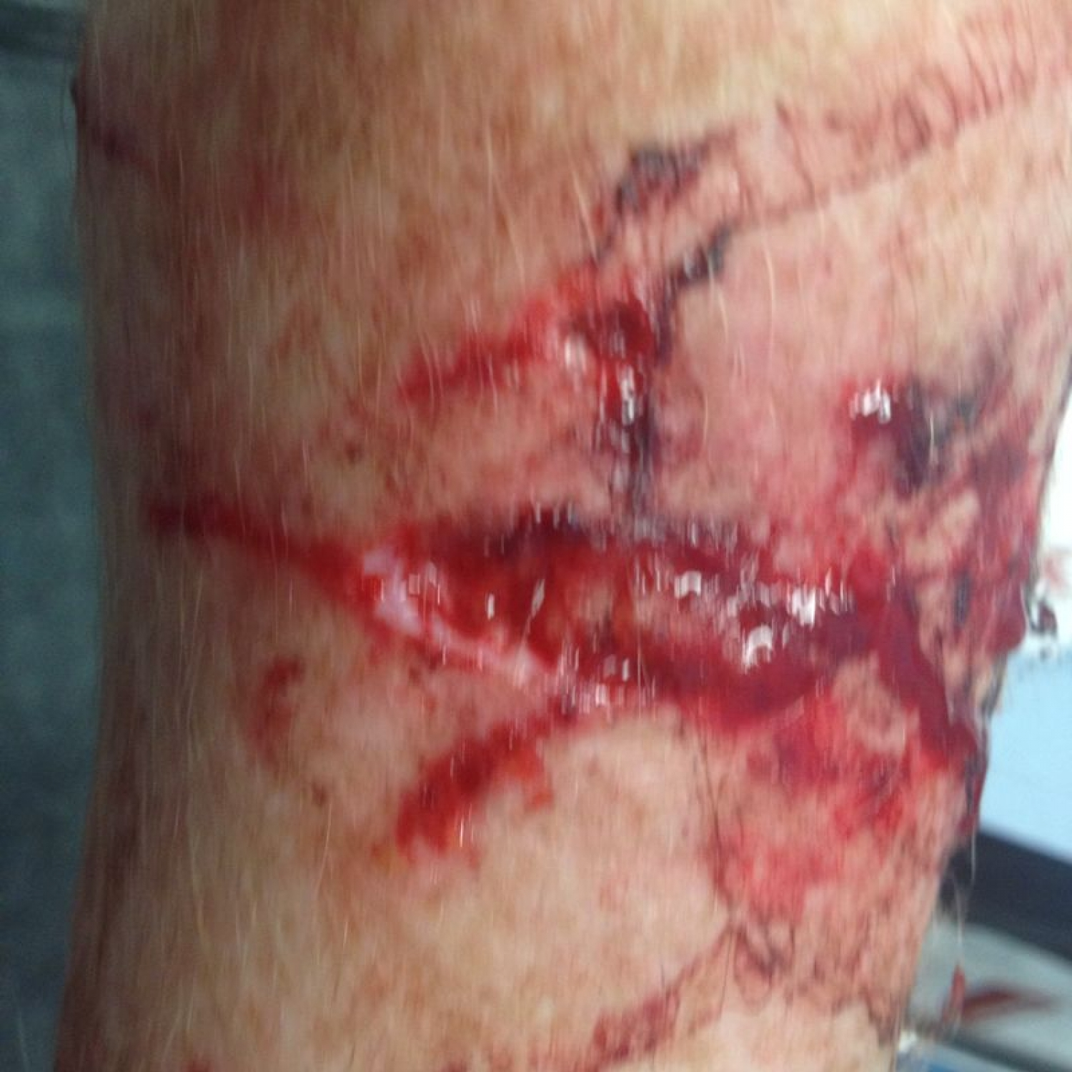 Shocking pictures of Basildon man who was mauled by a dog... as the owner escapes justice