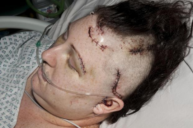 Shocking – Hayley Lowles in hopsital after the attack, showing some of the injuries inflicted by Sargent