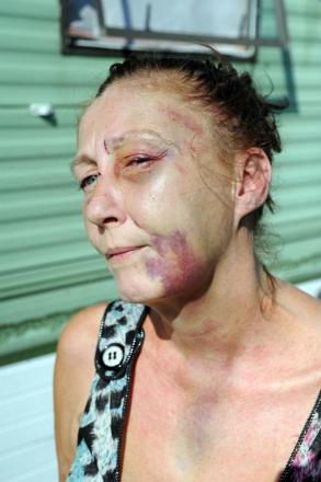 Josie McConnell was left badly injured after she was attacked in Thorney Bay Caravan Park, Canvey